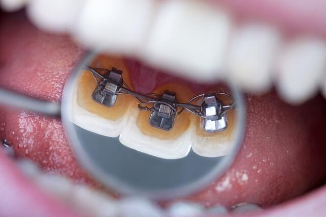 Dentists Helping Teens
